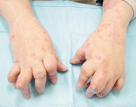 牛皮癣指甲的影响
